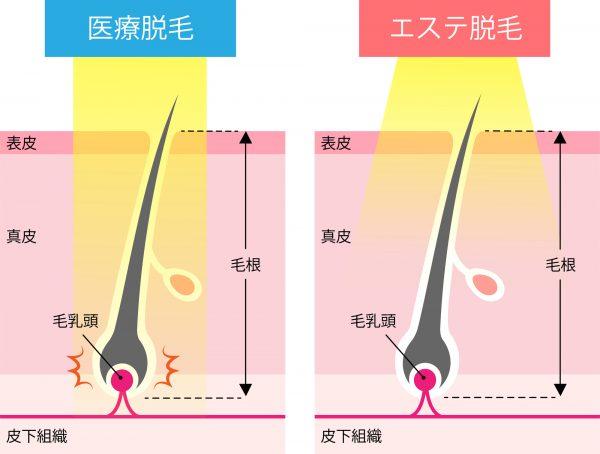脱毛 医療 エステサロン脱毛と医療脱毛の違い|医療脱毛専門のリゼクリニック